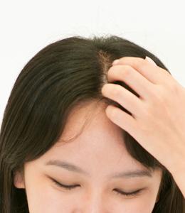 ストレス 頭皮 湿疹